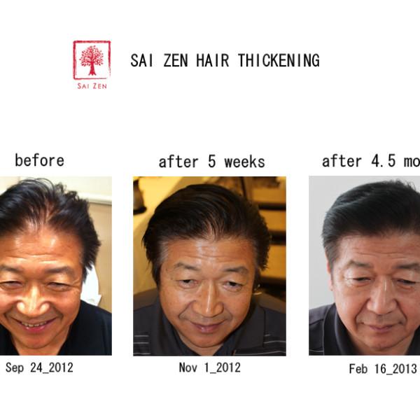 sai zen hair thickening before after 3