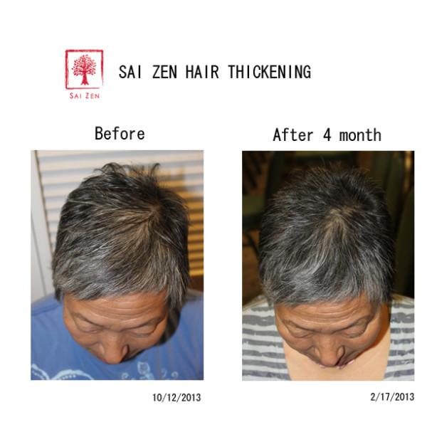 sai zen hair thickening before after 2