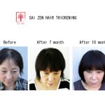 sai zen hair thickening before after 1